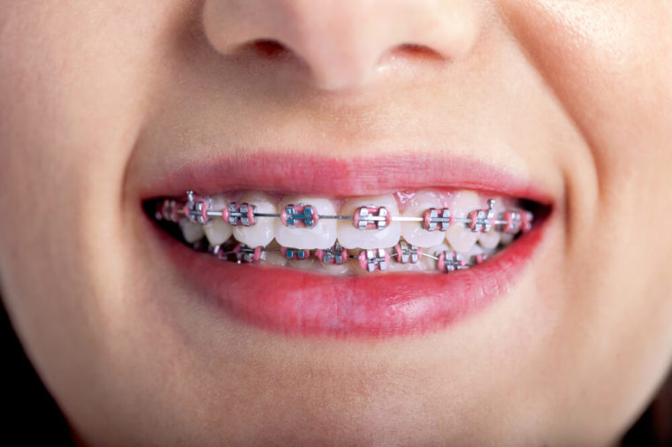 Taking Care Of Child's Braces